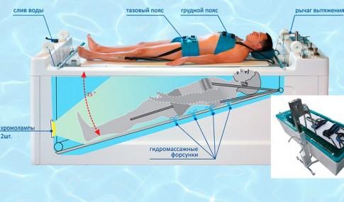 Подводное вытяжение позвоночника, фото 2