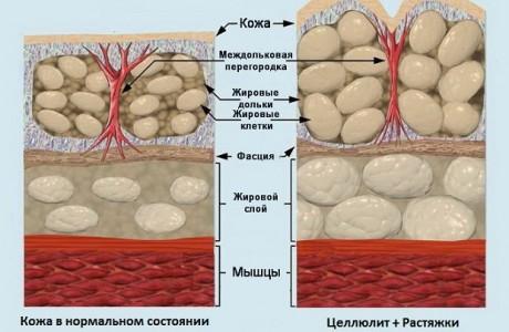 Массаж антицеллюлитный, фото 1